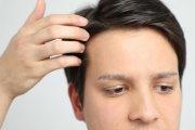 Transplantacja włosów - sposób na podniesienie męskiej atrakcyjności