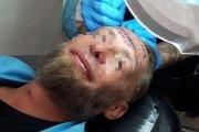 Bezdomny Polak dostał 100 euro od Anglika za to, że zrobił sobie tatuaż na czole
