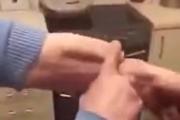 Pamiętasz faceta z penisem na ramieniu? Urolog wyjaśnia okoliczności
